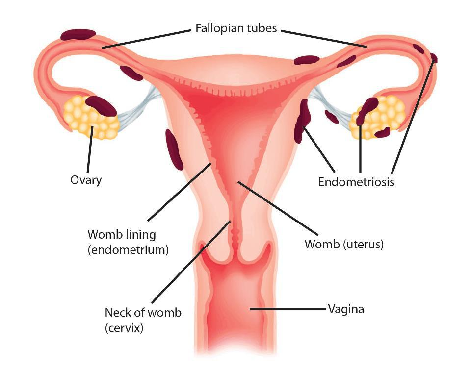 endometriosis