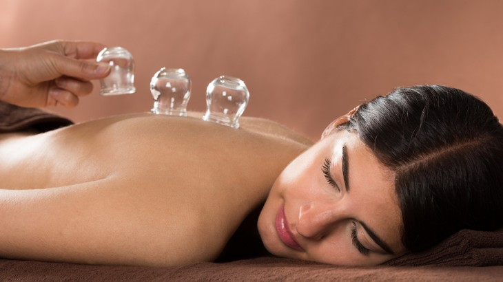 cupping therapy, 2016 Olympics Rio, Michael Phelps, fertility, IVF, acupuncture,