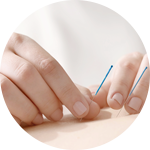 IVF_Acupuncture_New